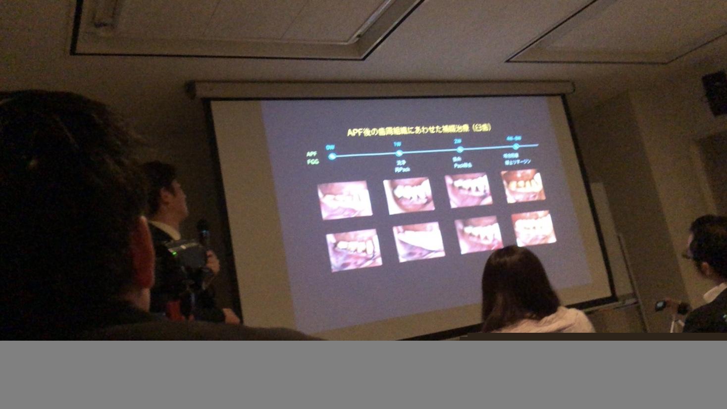 学術報告|ブログ更新情報 | MI総合歯科クリニック